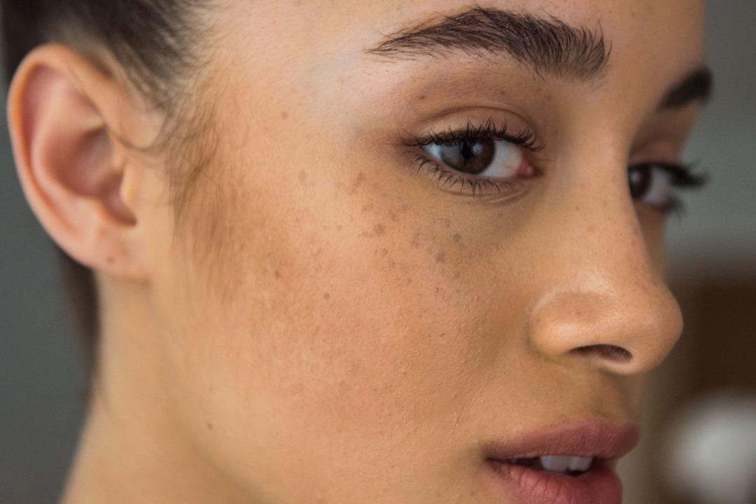 4 Cara Hilangkan Flek Hitam Di Wajah Dengan Madu Womantalk