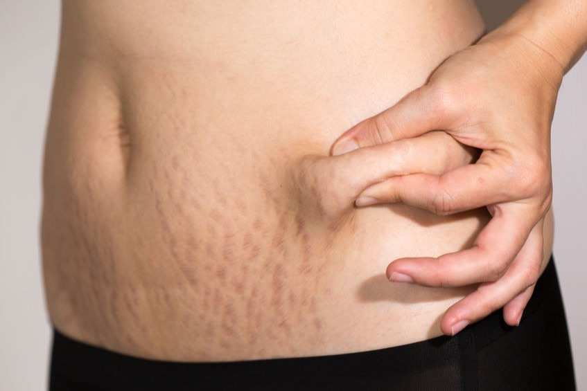 5 Cara Alami Menghilangkan Stretch Mark Di Perut Womantalk