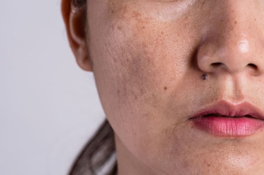 5 Cara Cepat Menghilangkan Bercak Putih Di Wajah Womantalk